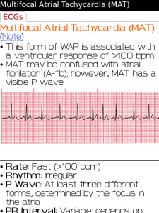 ECG Notes: Interpretation and Management Guide for